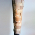 Imobilizator kolena